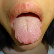 舌のふちに歯形