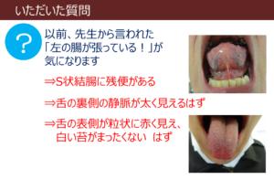 腸の状態を舌でチェック!