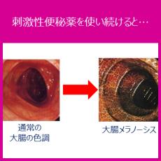 刺激性便秘薬の常用はNG!